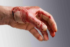 what-you-should-know-about-open-wounds
