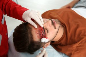 the-five-most-common-head-injuries-following-an-auto-accident