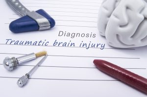 the-physical-effects-of-a-traumatic-brain-injury